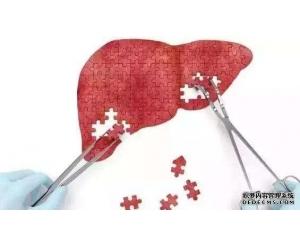 人感染乙肝病毒